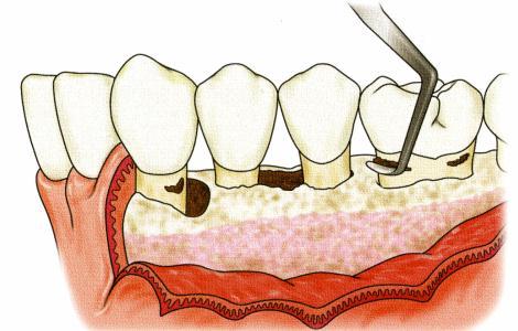「歯周外科処置」の画像検索結果